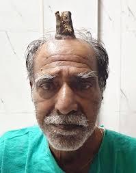 Ανέκδοτο: Πάει ένας που τον κερ@τωνει η γυναίκα του στον γιατρό …! Τρελό γέλιο